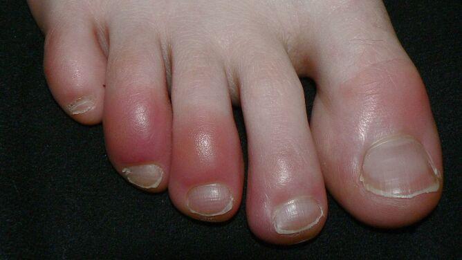 """""""Covidowe palce"""". Zdaniem dermatologów to kolejny objaw koronawirusa"""